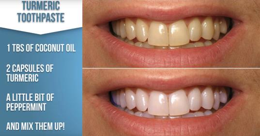 15 Super Easy Homemade Teeth Whitening