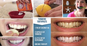 Homemade Teeth Whitening Remedies