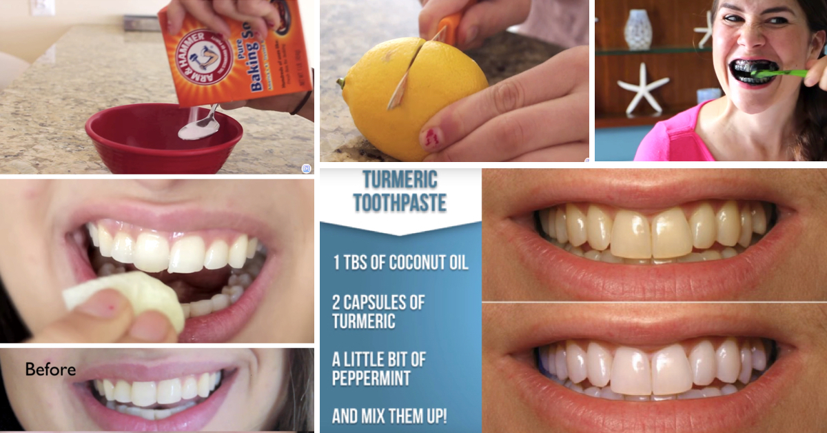15 Super Easy Homemade Teeth Whitening Remedies To Get Those