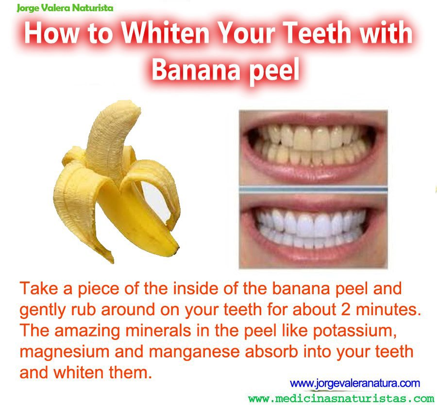 Homemade Teeth Whitening with Banana Peel